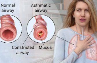 L'asma può essere curata con lo yoga?