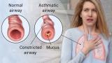 Kan astma worden genezen door yoga?